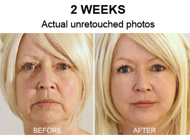 Woman Looks 20 Years Younger In 1 Week Secrets Revealed For The First Time